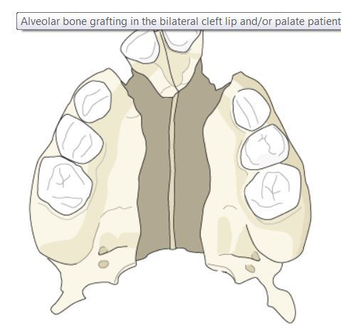 BilateralBoneGraft